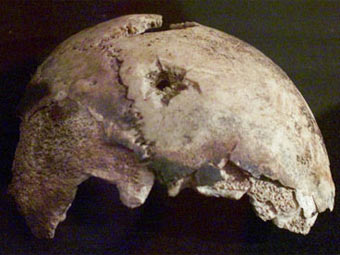 Фрагмент на череп